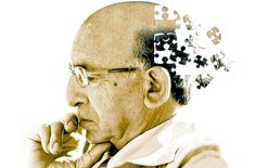 What is Alzheimer's Disease? According to the Center for Disease Control, Alzheimer's disease is a common cause of dementia causing as many as 50 to of What Is Dementia, Alzheimer's And Dementia, Dementia Care, Alzheimer's Treatment, Natural Treatments, Signs Of Alzheimer's, Alzheimer's Symptoms, Disease Symptoms, Mind Diet