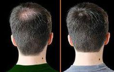 El tratamiento de los cabello pskov