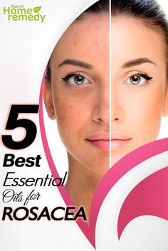 5 The Best Essential Oils For Rosacea