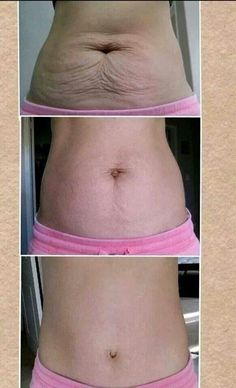 Results from using Nerium Firm!  Order yours today at www.wrinkleresults.nerium.com