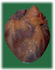1000+ images about Healthy Hearts on Pinterest | Human ...