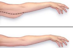 Comment perdre le gras de bras!