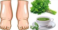 Swollen Feet Remedies This Powerful Homemade Tea Cures Swollen Legs in few Days Parsley Tea, Water Retention Remedies, Natural Diuretic, Foot Remedies, Homemade Tea, Unhealthy Diet, Natural Health Remedies, Herbal Remedies, How To Make Tea