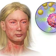 Pictures of Anaphylaxis Symptoms-A potentially life-threatening reaction to an allergic substance, anaphylaxis creates fast and serious symptoms throughout the entire body. Without treatment, symptoms can cause serious health consequences and even death. #anaphylaxis