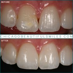 Patient was referred to CB Smiles by her pediatric dentist for cosmetic treatment of her malformed front tooth. A veneer layer was placed over the face of this tooth to block out the underlying spot and to create a natural tooth shape to blend with her other teeth. . . . . #friday #work #art #chicago #beautiful #smiles #smile #glenviewdentist #glenview #theglen #illinois #chicagodentist #northshoredentist #bestdentist #beforeandafter #change #picoftheday #co