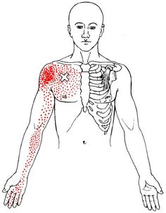The pectoralis minor is the smaller, lesser-known chest muscle. It helps stabilize the scapula and is the prime mover in scapular downward rotation. Traps Muscle, Lower Traps, Tight Neck, Arm Circles, Good Stretches, Scapula, Chest Muscles, Trigger Points, Pressure Points