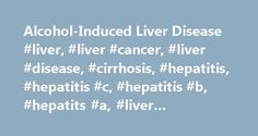 Alcohol-Induced Liver Disease #liver, #liver #cancer, #liver #disease, #cirrhosis, #hepatitis, #hepatitis #c, #hepatitis #b, #hepatits #a, #liver #transplant, http://germany.nef2.com/alcohol-induced-liver-disease-liver-liver-cancer-liver-disease-cirrhosis-hepatitis-hepatitis-c-hepatitis-b-hepatits-a-liver-transplant/  # Alcohol-Related Liver Disease Explore this section to learn more about the ways in which alcohol affects the liver and how alcohol-induced liver disease is diagnosed and…
