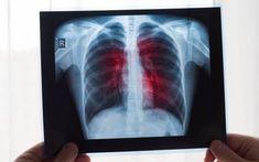 Plíce se snadno znečistí a při napadení viry mohou vypovědět službu. Naučte se je jednoduše vyčistit a posílit - AAzdraví.cz