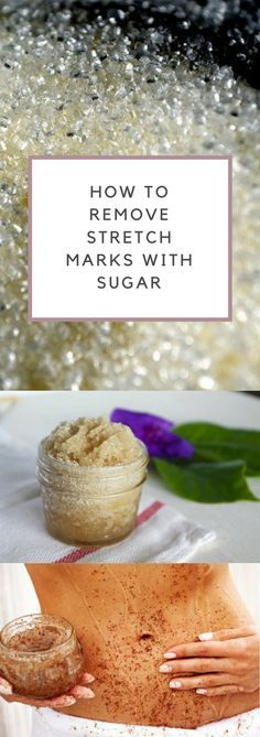 How To Remove Stretch Marks With Sugar