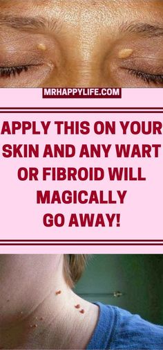 Have you at any point had warts or fibroids? They look extremely unsavory and they are amiable developments of the skin and it is truly difficult to dispose of them.