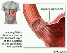 A Mallory-Weiss tears  occur in the mucus membrane of the lower part of the esophagus or upper part of the stomach, near where they join. The tear may bleed.