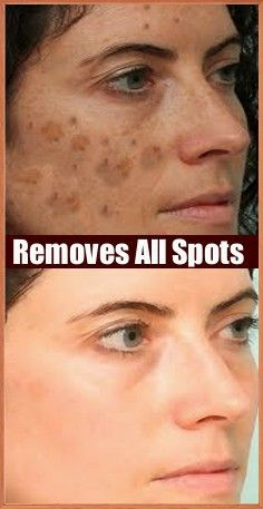 It Removes All Spots On Your Face In Just 3 Nights - Beauty 4 You