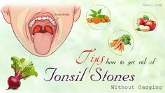 How to get rid of tonsil stones is a new article that reveals some of the natural home remedies for tonsil stones. Home Remedy For Cough, Home Remedies For Acne, Cough Remedies, Natural Home Remedies, How To Stop Wheezing, Phlegm In Throat, At Home Tattoo Removal, Getting Rid Of Phlegm, Tooth Infection