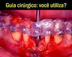 Guia cirúrgico: você utiliza? | OVI Dental