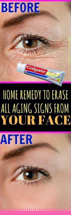 You will need: Aloe Vera Gel Vitamin E capsule Tomato juice Plain toothpaste