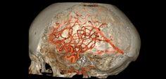 Une étude montre qu'une prise en charge rapide des accidents ischémiques transitoires permettrait de réduire fortement le nombre d'accidents vasculaires cérébraux en France.