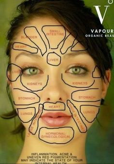 Acne Body Mapping Zones
