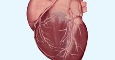 What is a Heart Attack? ..... A new study finds that bringing blood pressure down below current recommendations may greatly reduce the risk of heart attack and stroke.