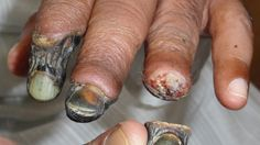 Effect from the drug Krokodil