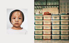 Lay Lay, 4, Mae Sot, Thailand |