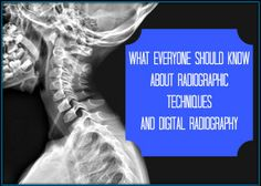 What Everyone Should Know about Radiographic Techniques and Digital Radiography