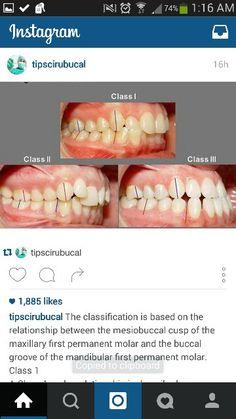 Dental classification