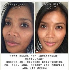 Make your skin glow! Fix uneven skin tone and remove dark spots. Reverse is the ultimate skincare routine to reverse sun damage on skin. Clinically proven to deliver results. Click to purchase. | Reverse results | Active Hydration Serum | Lip Serum | AMP MD roller | Soothe Regimen for sensitive skin | #rodanandfields #beauty #skincare #2018goals