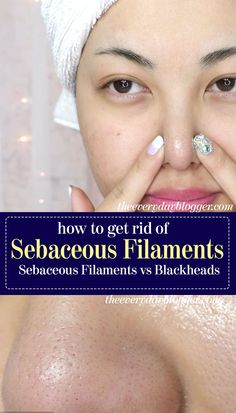 Mar 2020 - Those gray dots over your nose? Find out what are they and how to prevent and how to get rid of sebaceous filaments Clean Nose Pores, Clogged Pores On Nose, Oily Nose, Acne On Nose, Reduce Pimple Redness, Minimize Pores, Large Pores On Nose, How To Close Pores, Health
