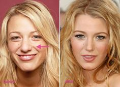 Blake Lively #PlasticSurgery Before and After nose job 3 Blake Lively Nose Job before and after photos leaked! Find more http://slimcelebrity.com/plastic-surgery/blake-lively-nose-job/