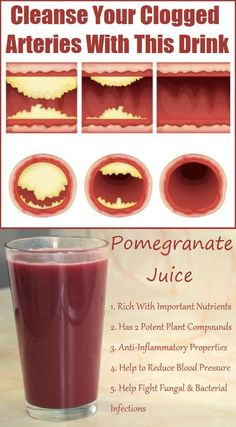 Clogged arteries mean a serious risk of heart attack or stroke. If you want to cope with it-- start drinking this drink!