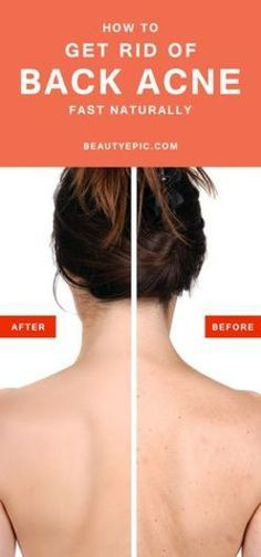 Back Acne Treatment - Getting Rid of Body Acne ** More details can be found by clicking on the image. #BackAcneTreatment