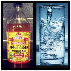 Ways to remove the Acnes and pimples Mix Apple Cider Vinegar with water apply with cotton on affected area acne will go away in 5 days