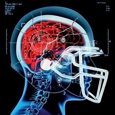 The Truth About Concussions and High School Football | Culture News | Rolling Stone