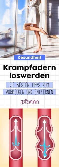 Get rid of varicose veins: prevent effectively and treat properly Krampfadern loswerden: Effektiv vorbeugen und richtig behandeln Varicose veins? Fitness Workouts, Hip Workout, Fitness Motivation, Wellness Fitness, Health And Wellness, Health Tips, Health Fitness, Hip Muscles, Varicose Veins