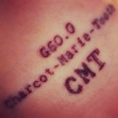 #Charcot-Marie-Tooth #tattoo #disability