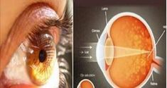 Bu Baharat Gözlerinizde %97 Oranında İyileşme Sağlıyor!
