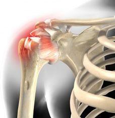 Impingement-Syndrom - Schulterschmerzen: harmlos oder Arthrose, Sehnenruptur, Kalkschulter oder Schleimbeutelentzündung? | Orthopädische Gelenk-Klinik Freiburg