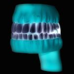 3D printing can build a new crown for a tooth in hours instead of making the patient waiting a week.
