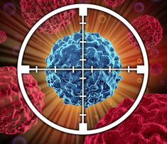 Natural Cancer Treatment You Can Try - Read more on a report that breast cancer metastasis might be controlled through RNA editing of a tumor-promoting gene called Beat Cancer, Cancer Cure, Cancer Cells, Fighting Cancer, Lung Cancer Treatment, Target, Alternative Medicine, Alternative Health, The Cure