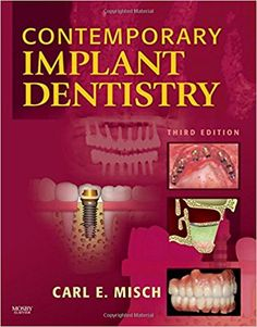 31 best movies books images on pinterest book book book book contemporary implant dentistry 3e subscribe here and now http fandeluxe Images