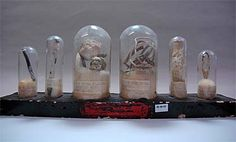 Foreign Objects removed from the bladder, from the UCL Pathology Collection