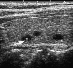 Benign, small non-neoplastic nodules: Longitudinal sonogram of the thyroid shows small cystic nodules with internal echogenic foci with posterior reverberation, ''comet-tail,'' artifacts (arrow).