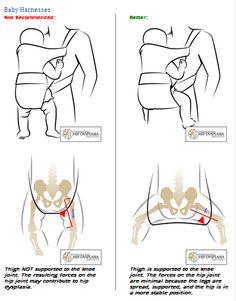 "A good reason to avoid ""crotch hold"" baby carriers. Choose Beco and Boba over Bjorn and Chicco!"
