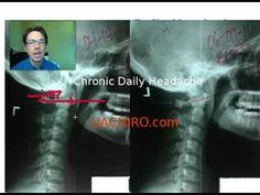 The headache bone? Chronic daily headaches in Auburn Hills, MI