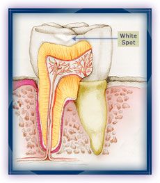 2. White Spots: Bacteria that are exposed to sugars or carbohydrates can make acid. The acid attacks the crystal-like substance in the tooth's outer surface. This process is known as demineralization. The first sign of this is a chalky white spot. At this stage, the decay process can be reversed. Using fluorides at home and in the dental office can help the tooth repair itself.