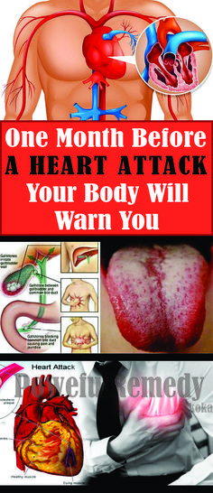One Month Before a Heart Attack, Your Body Will Warn You – Here are the 6 Signs !!