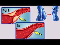 Zaledwie 1 łyżka tego eliksiru spala tłuszcz i zapobiega zatykaniu tętnic! - YouTube Youtube, Youtubers, Youtube Movies