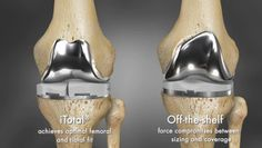 3ders.org - 3D printing brings revolution in knee surgeries | 3D Printer News & 3D Printing News #3dPrintedMedicalBiotech