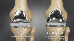 3ders.org - 3D printing brings revolution in knee surgeries   3D Printer News & 3D Printing News