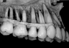 This is what the roots of the teeth look like below the surface of the gum tissue and bone.
